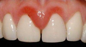La gingivitis manipula el sistema inmunológico