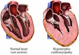 Posible gen responsable de cardiomiopatía