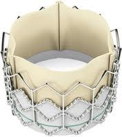 Válvula aórtica artificial que no necesita cirugía a corazón abierto